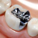 健康のために「銀歯」は外した方がいいのか否か
