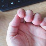 爪とホメオパシー